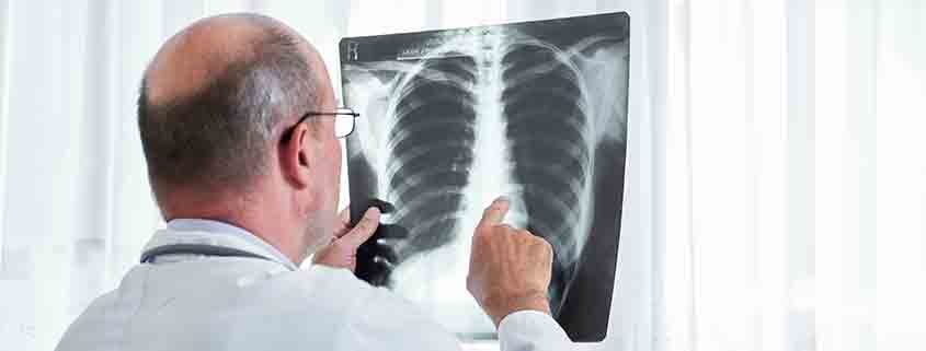 radon gas and lung cancer
